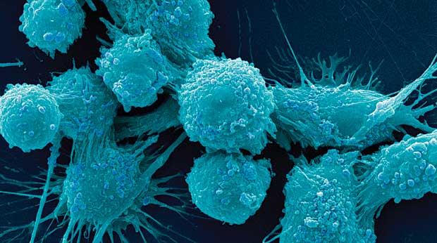 Prostate cancer cells. (Image by Dr. Gopal Murti/Visuals Unlimited, Inc.)